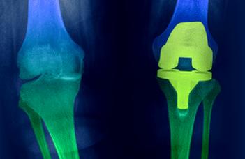 Doktori témakiírás: Térdprotézis kopás és kilazulás általi tönkremenetelének numerikus vizsgálata